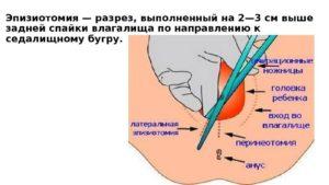 Эпизиотомия как ухаживать за швами