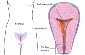 При климаксе разрастание эндометрия