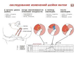 При овуляции спина болит