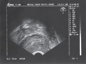Матка при беременности на ранних сроках на узи
