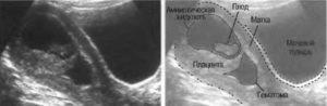 Субамниотическая гематома при беременности что это такое