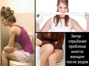 Как ходить в туалет после родов со швами
