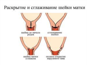 Признаки открытия шейки матки