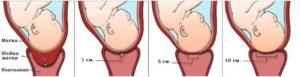 Роды с короткой шейкой матки