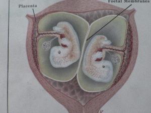 Амниотическая перегородка при двойне