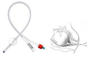 Что такое катетер для беременных