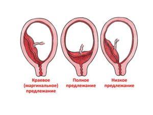 Предлежание плаценты 20 недель