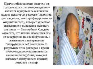 Почему появляется желтушка у новорожденного