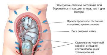 Тонус матки на 32 неделе беременности симптомы