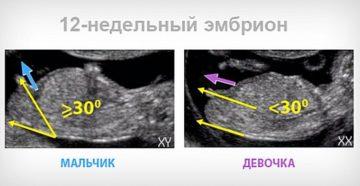 Можно ли узнать пол ребенка на 12 неделе