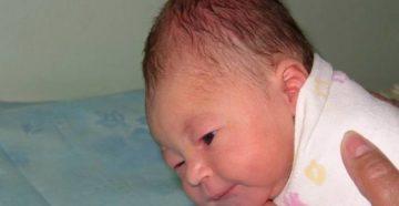 Почему вытянутая голова у новорожденного