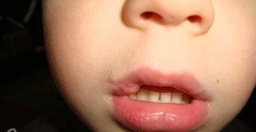 Ребенок рассек губу что делать