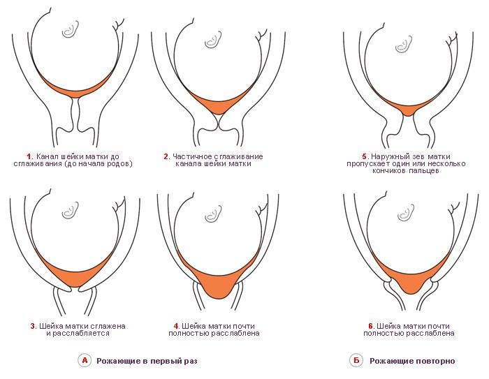 Длина шейки матки перед родами