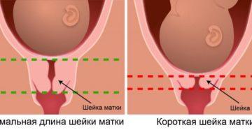 Шейка мягкая при беременности