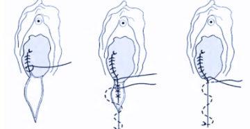 Сколько заживает шов после эпизиотомии